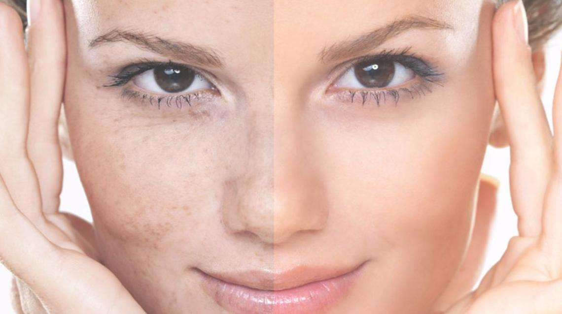 Treatment Options for Pigmentation and Skin Rejuvenation