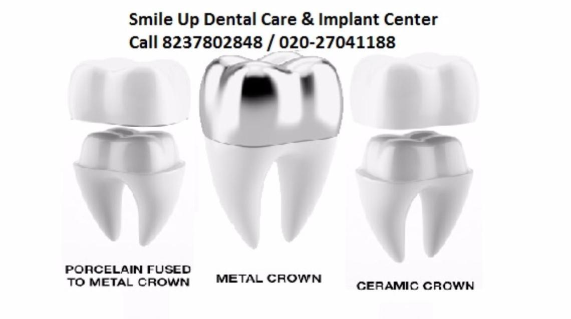 What U Need to Know About Dental Crowns?