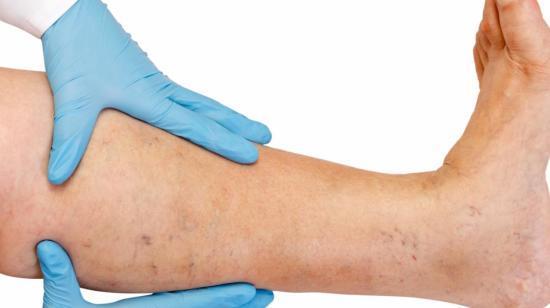 Sciatica: Symptoms, Treatment, Exercises & Prevention