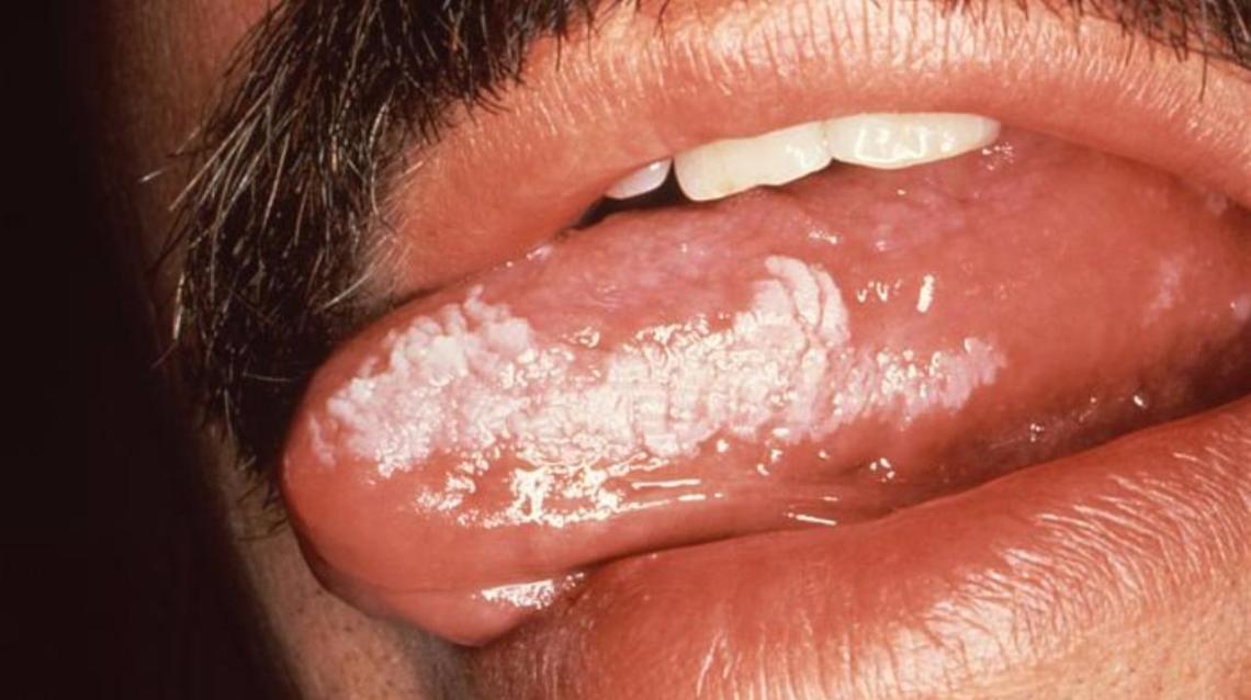 Oral Infection Inhiv