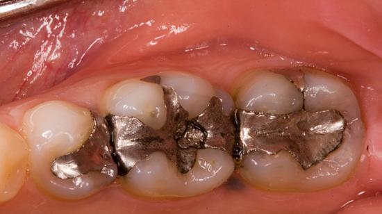 Do You Still Love Your Silver Fillings?
