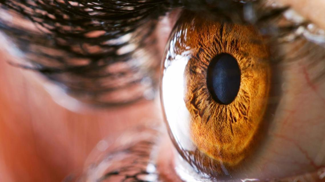 Planning a Cataract Surgery? Here's what you need to know