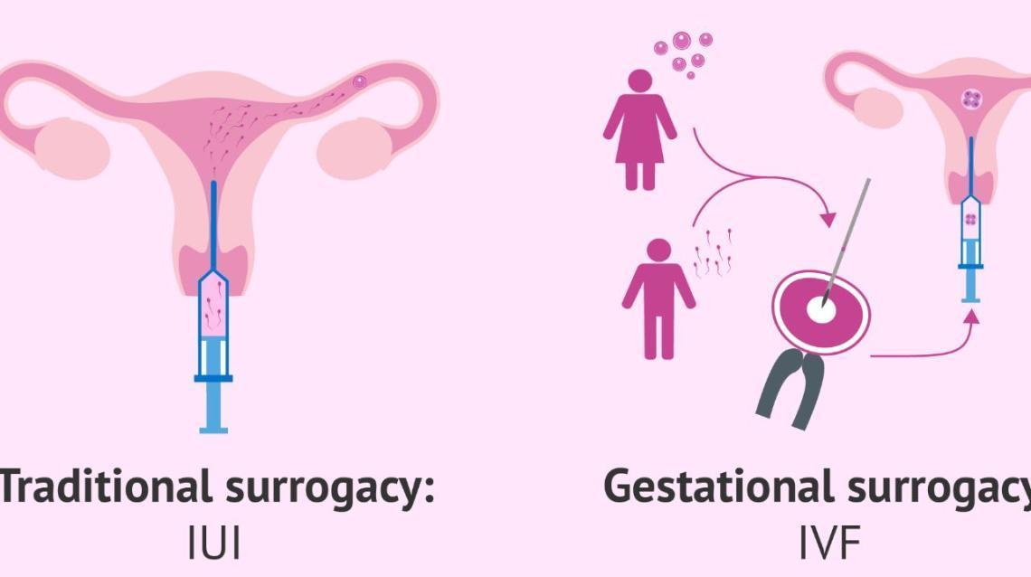 Traditional Surrogacy vs. Gestational Surrogacy- India Ivf Fertility Center(noida /Delhi / Gurgaon)