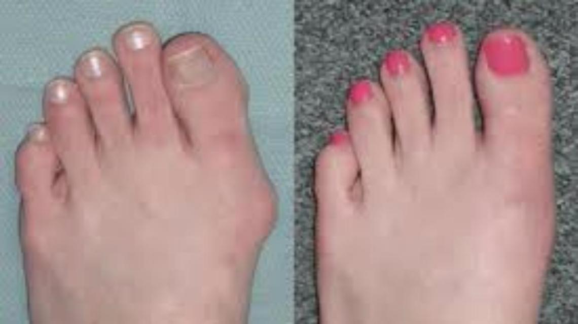 Bump Toe Ladies Shoes