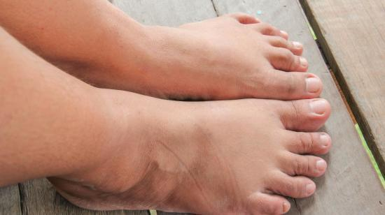 Have You Been Ignoring That Swelling on Your Feet?