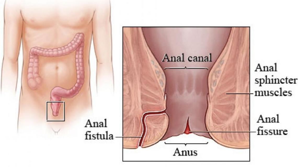 Facts About Anal Fissure