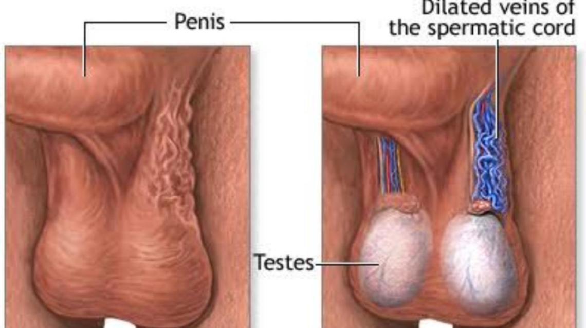 Varicocele- Is it a threat to Male fertility