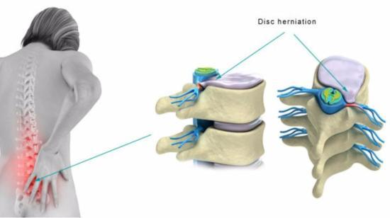 8 Health Tips for Those With Lumbar Disc Prolapse