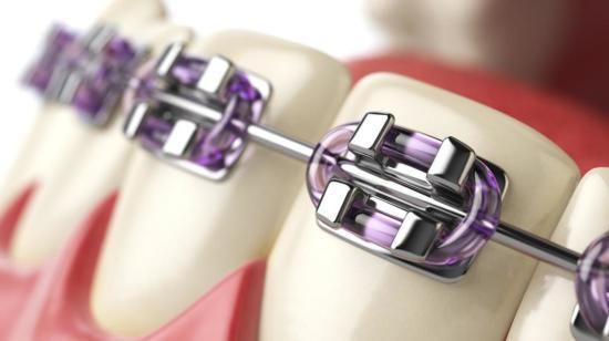 6 Tips to Maintain Oral Hygiene with Braces