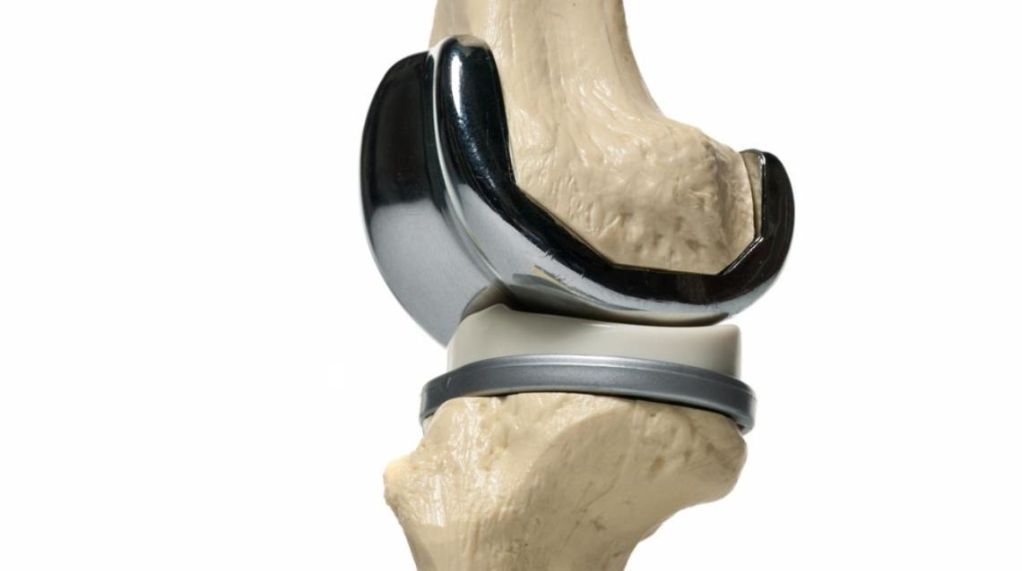 Important Exercises After Knee Replacement