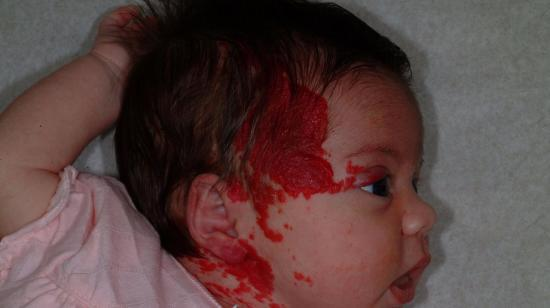Red Birth Mark Over Face? It Could Be Infantile Hemangiomas