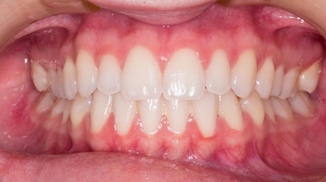 Esthetic Tooth Fillings