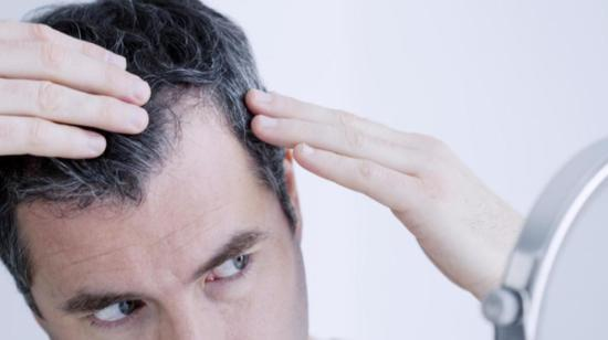 Male Pattern Hair Loss: Genetic or Heredity?