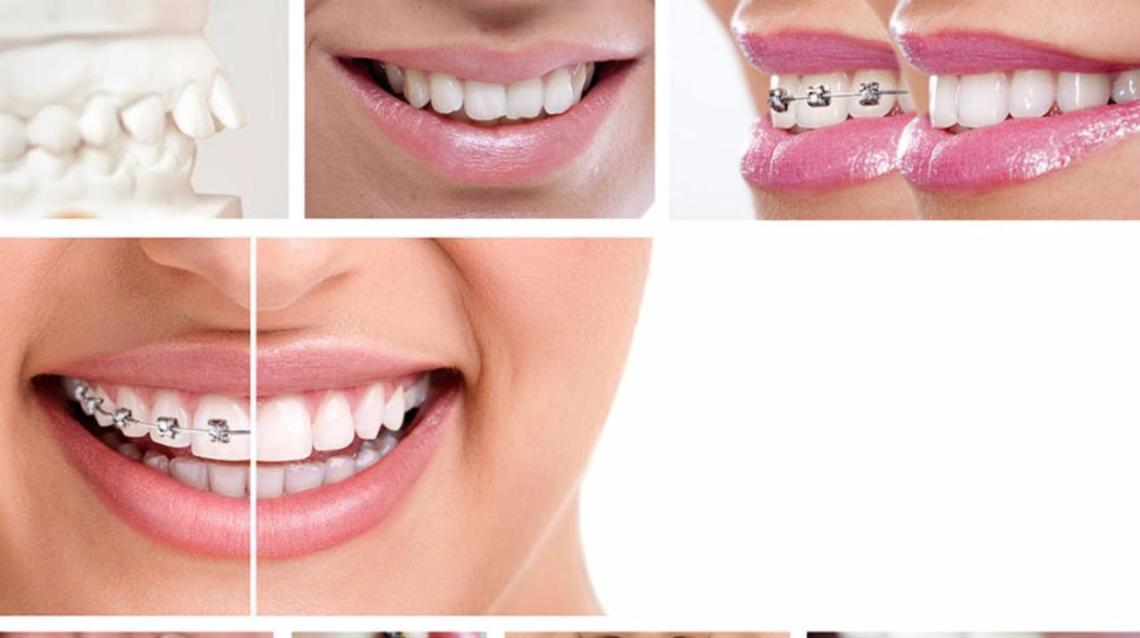 Frequently Asked Questions About Orthodontics
