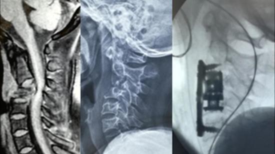 Tuberculosis of Cervical Spine - Potts Spine
