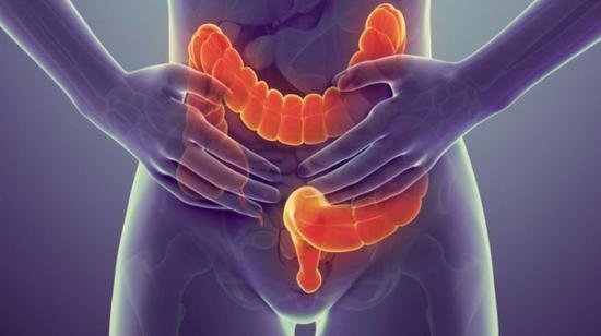 Cancer of Colon and Rectum
