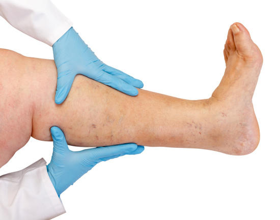 5 Tips to Prevent Varicose Veins & Varicose Ulcers