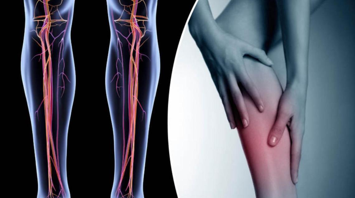 Deep Vein Thrombosis (Dvt): A Brief Overview