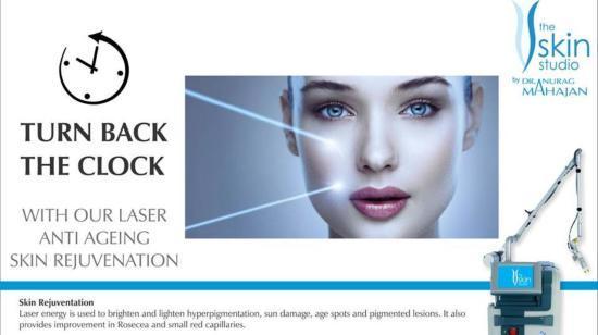 #Smartxide2 Laser Skin Rejuvenation