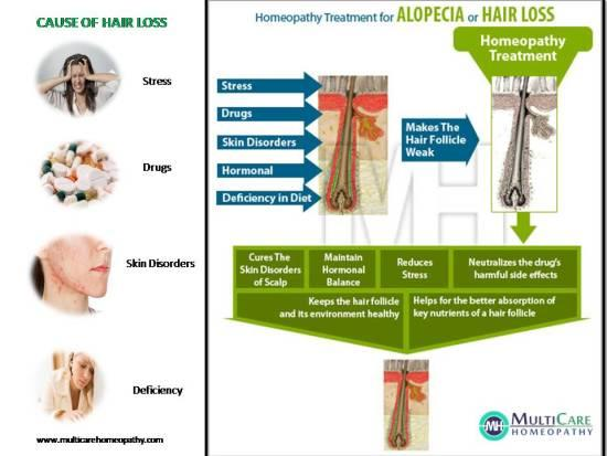 6 Best Homeopathy Medicines for Hair Fall