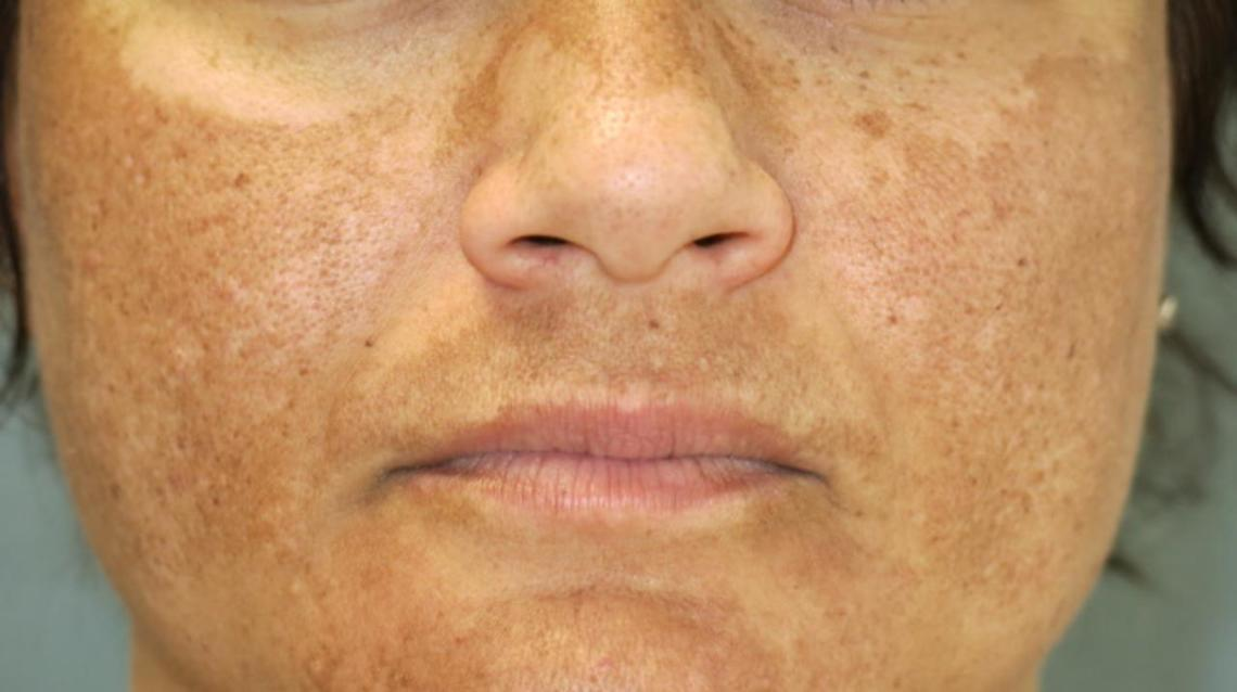 Melasma: Prevention and Treatment
