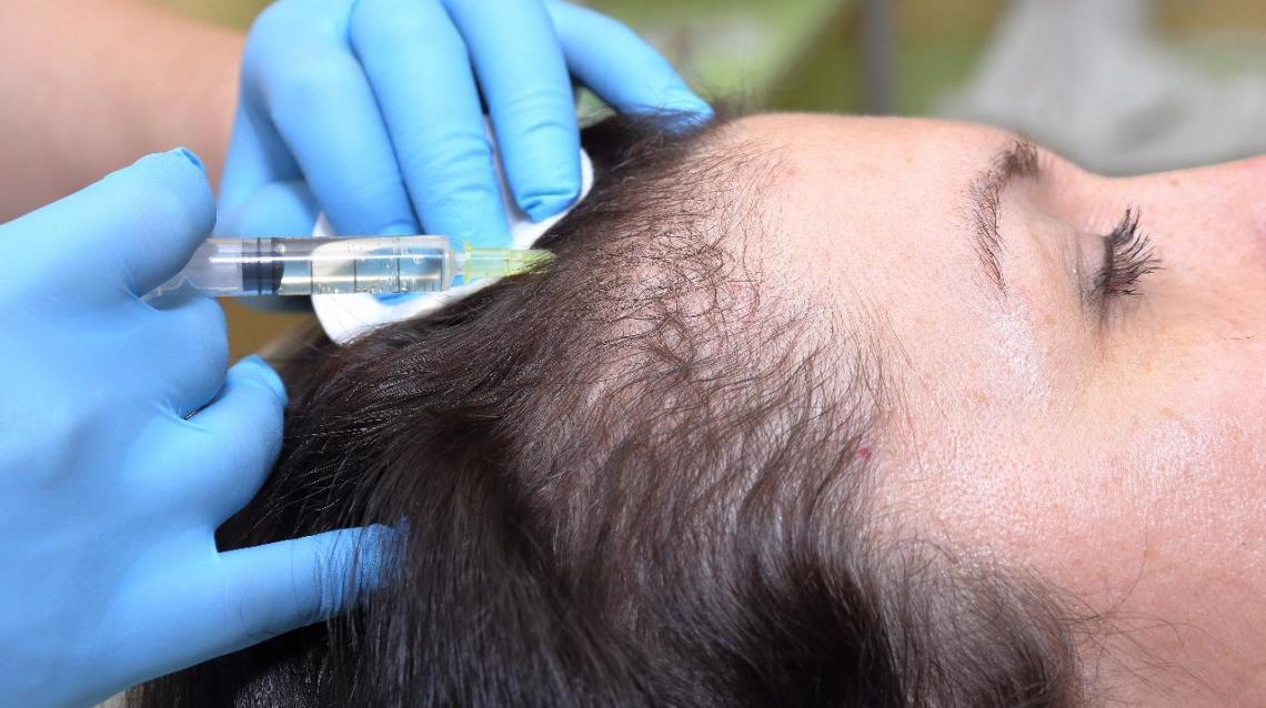 Is Prp Therapy Really Effective in Hair Fall ?
