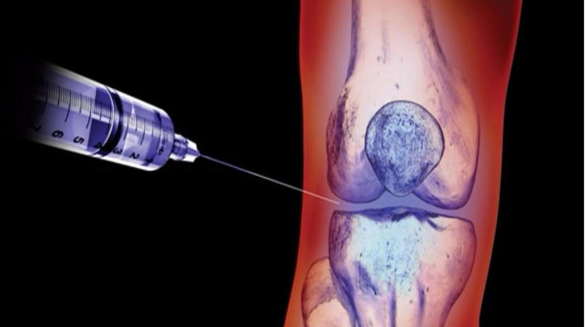 Knee Injection - Synovial Fluid Replacement Therapy