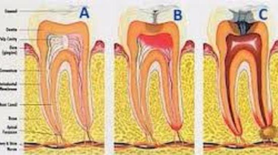 Rct / Root Canal Treatment Is Painless and Can Save Your Tooth