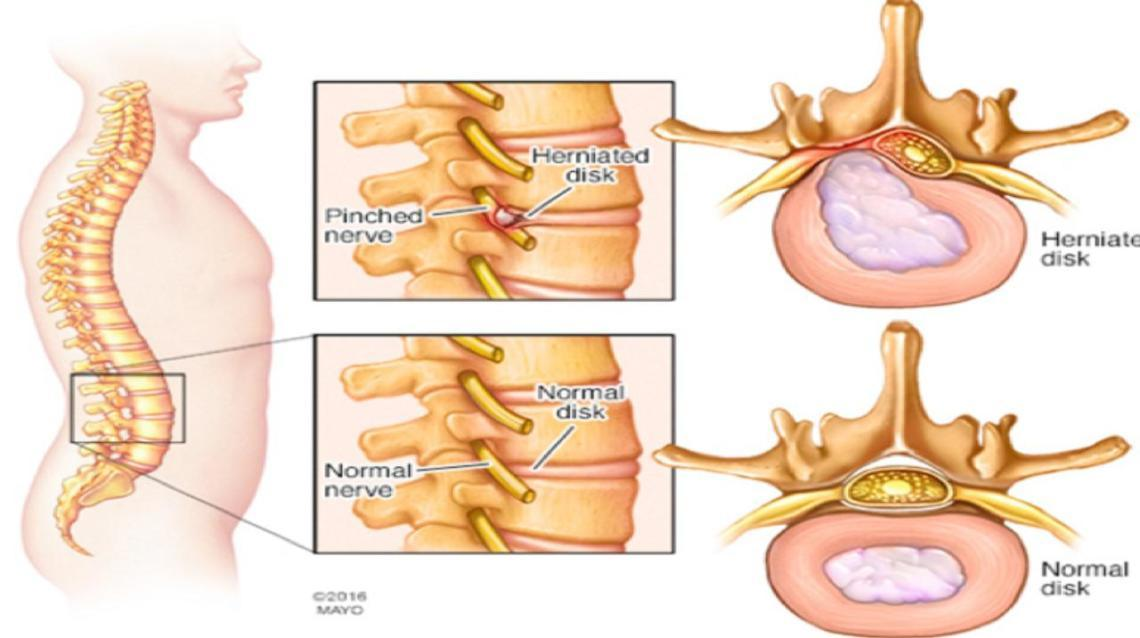 Is Your Back Aching? Sciatica? Read for Non-Surgical Treatment