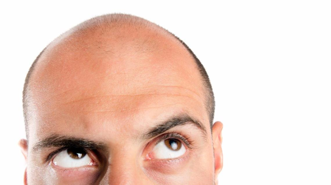 Minoxidil: Confused About It