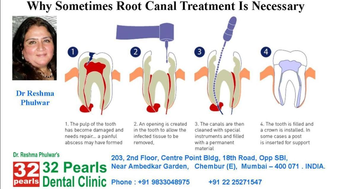 Why Would You Need Root Canal Treatment?