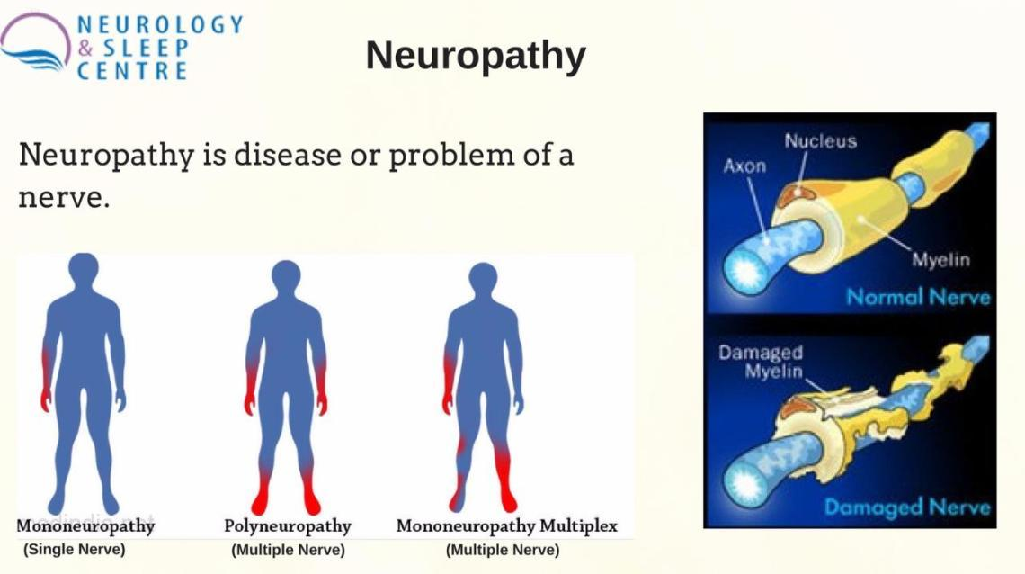An Overview on What Is #Neuropathy?