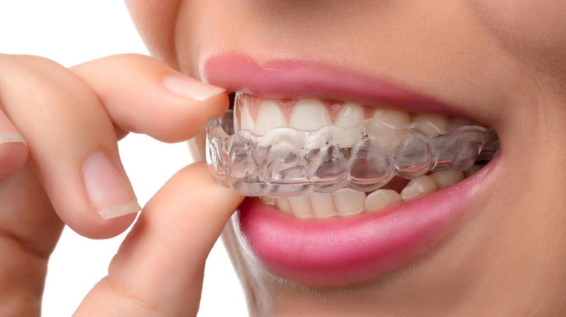 What Works Better  : Braces or Invisaign