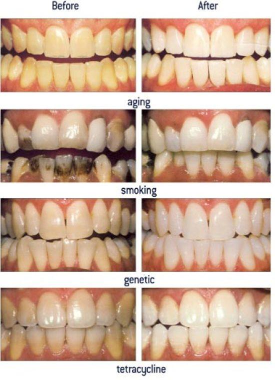 Management of discoloration. Image Courtsey Google Images