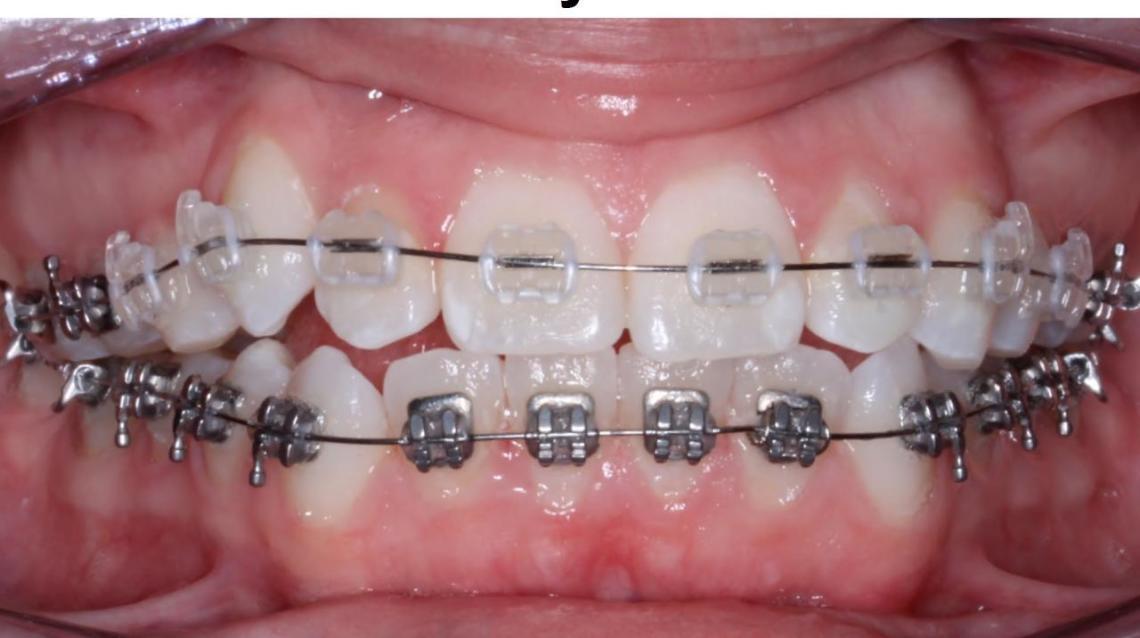 Orthodontics for Beautiful smile..!!!