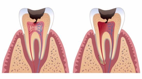 How a Small Cavity Can Lead to a Severe Toothache if Not Treated in the Right time...!!