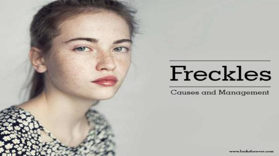 Freckles: Causes and Management