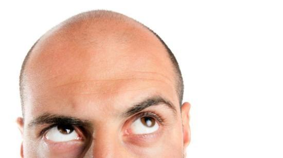 Should I Get Medically-Aided Baldness Treatment?