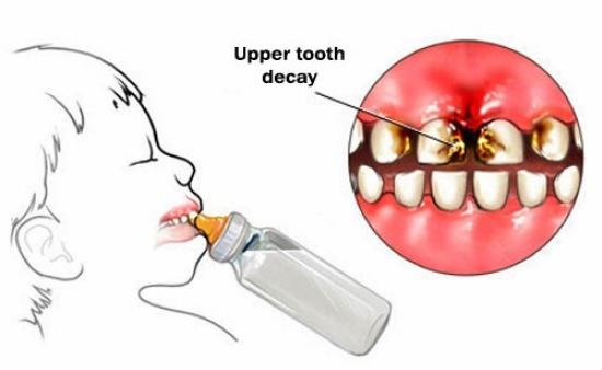 Image result for nursing bottle caries