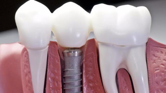 Why Do Dental Implants Costs Much? 2/2
