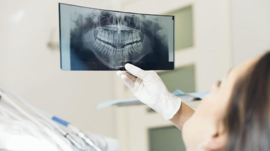 Dental X-Rays#picture#detectdamage#