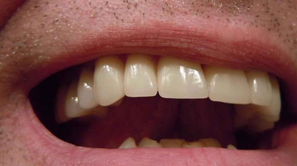 What Is The Cost Of Zirconia Crown - My Dentist Gave Me Z