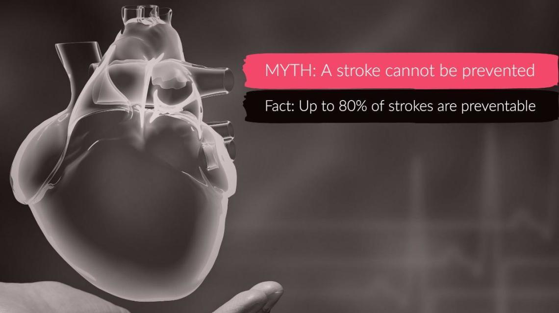 The One-Minute Guide to Identifying Stroke
