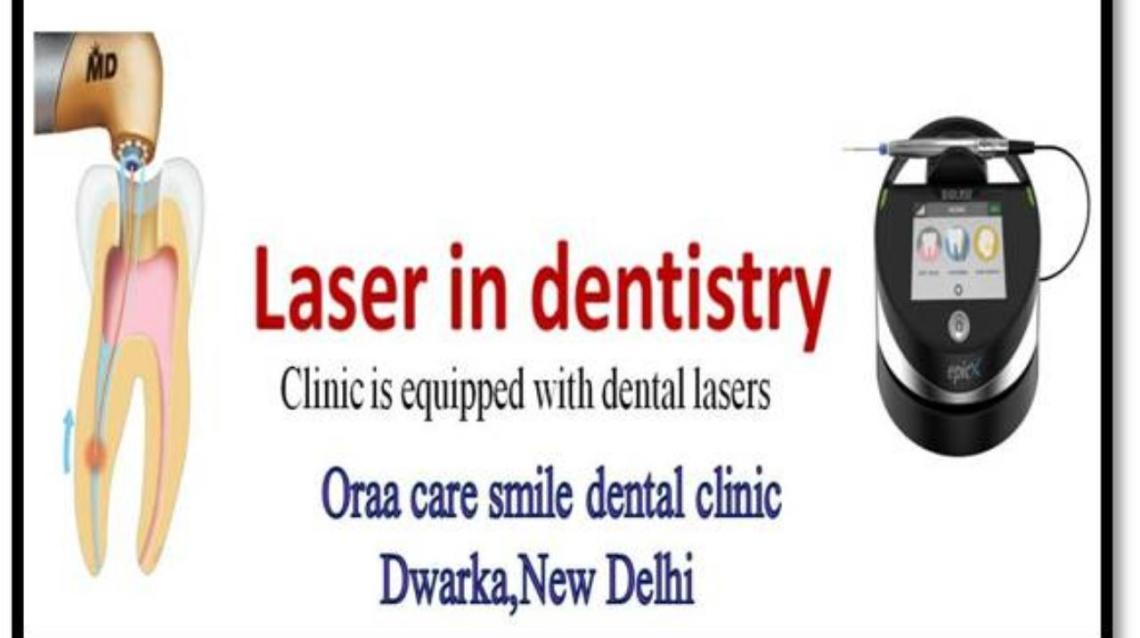 Application of Laser in Dentistry