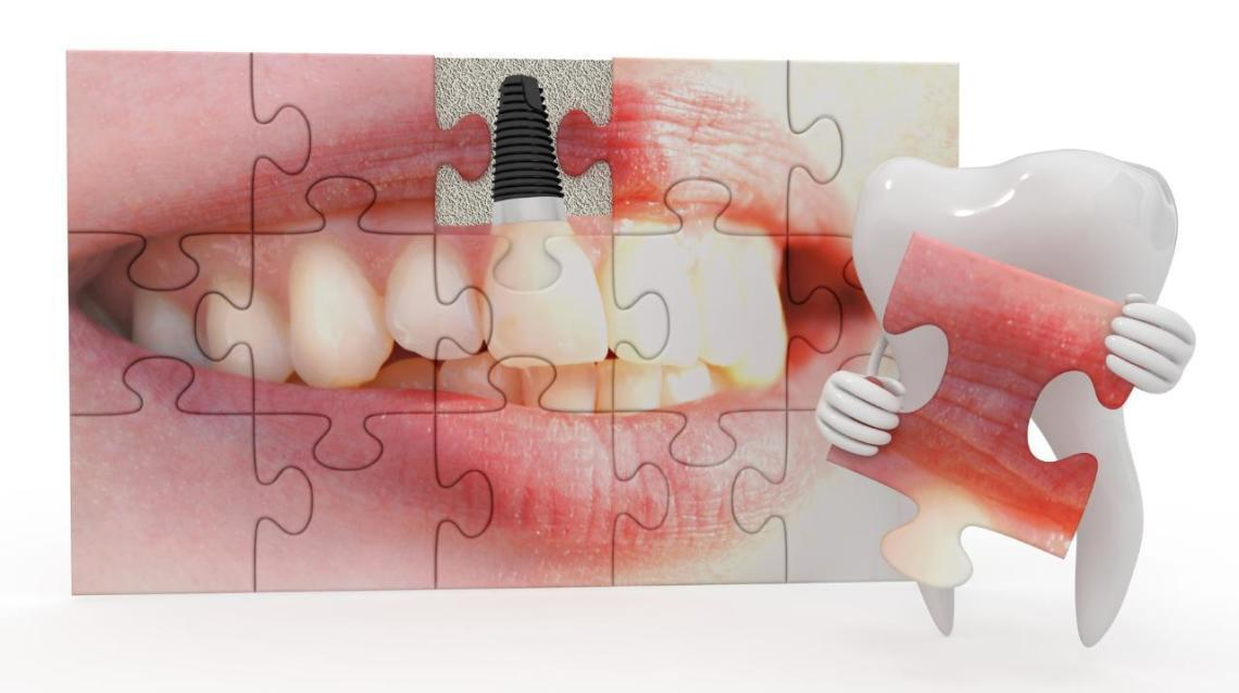How Are Dental Implants Made?