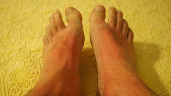 Burning Pain or Tingling Sensation in Hands or feet