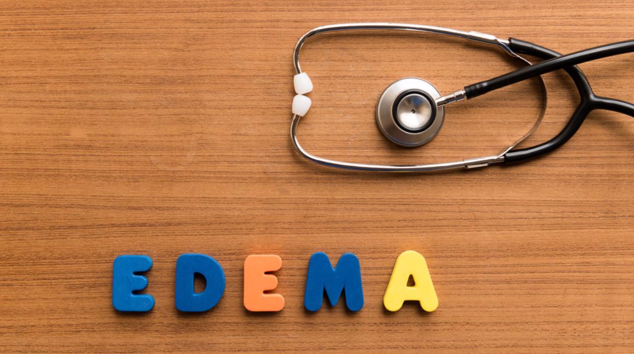 What Is an Edema?