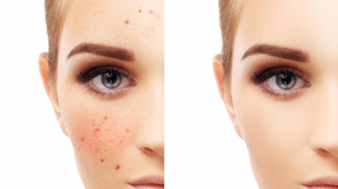 6 Effective Tips to Reduce Pimples
