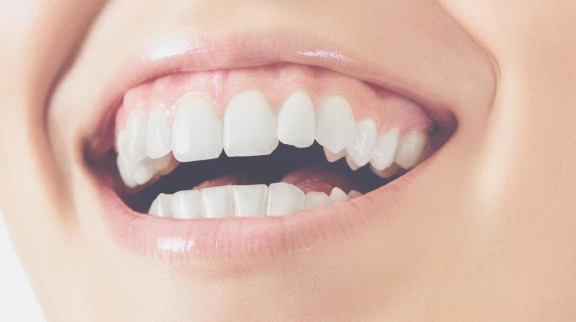 Are You Suffering of Pale Gums and Why?