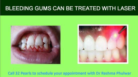 Bleeding Gum – Cure It With Laser Treatment